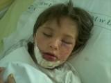 10-letnia łodzianka dotkliwie pogryziona przez psa. Lekarze założyli jej 100 szwów! [zdjęcia]