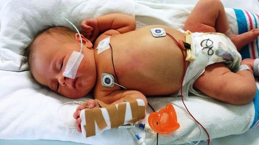 Choroba Kawasakiego może być śmiertelnie groźna dla dzieci....