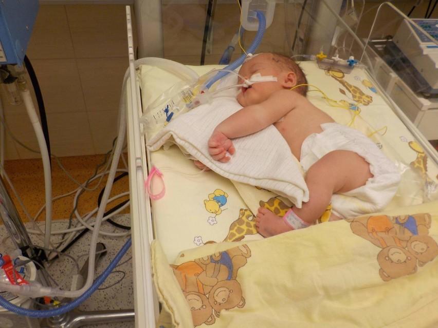 Dwuletnia Kasia Wołoszko, choć jest chora, zawsze pogodnie...