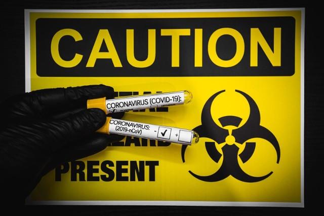 Badania potwierdziły, że kobieta, która trafiła do Szpitala Miejskiego w Rzeszowie, ma koronawirusa.