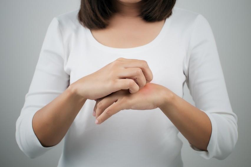 Odmrożenie, zaczerwienienie, pokrzywka na skórze? To może być koronawirus