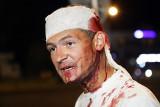 Uwolnieni na Białorusi Polacy: bito nas i torturowano. To był horror