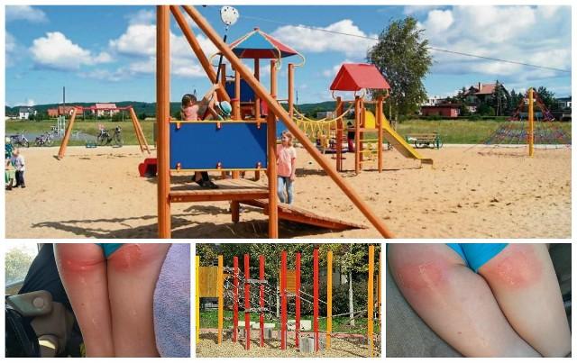 UWAGA na placu zabaw w CZASIE UPAŁU - ZJEŻDŻALNIE zamieniają się w PATELNIĘ. 4-letnia Asia Wright doznała poważnych poparzeń.