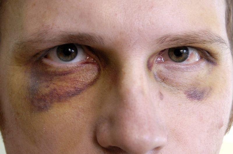 Tak Mariusz Woźniak wygląda sześć dni po interwencji policji.