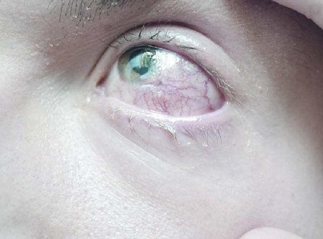 Tak wygląda dziś oko pana Andrzeja. Kamień poważnie je uszkodził. Nigdy nie będzie już sprawne w 100 proc.