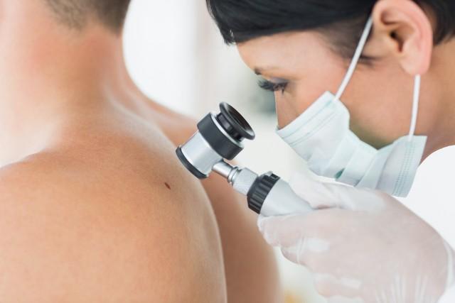 Lekarz ocenia znamiona barwnikowe w oparciu o tzw. system ABCDE, który opisuje najczęstsze kliniczne cechy czerniaka