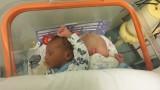 W łódzkim szpitalu urodziły się bliźniaki, z których jedno jest albinosem
