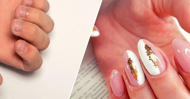 Krótkie, łamliwe czy obgryzione paznokcie sprawiają, że idealny manicure jest dla ciebie niemożliwy? Nic bardziej mylnego - ty też możesz mieć piękne, długie paznokcie! Zobacz niezwykłe metamorfozy dłoni ->