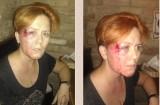 Brutalne pobicie, napaść, porwanie... Femen na celowniku służb? [DRASTYCZNE ZDJĘCIA 18+]