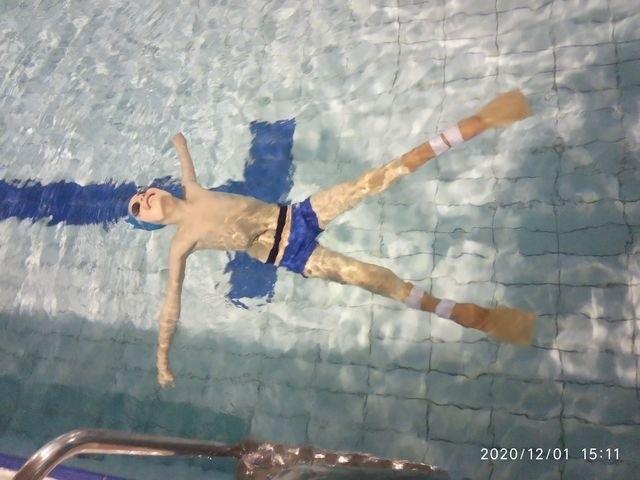 Filip rośnie i dlatego nawet dwa razy w ciągu roku potrzebuje nowych protez. – Końcem listopada tego roku wykonaliśmy nowe protezy. Są większe  i dlatego efekt pływania będzie jeszcze lepszy – wyjaśnia Tomasz Kot, technik ortopeda.