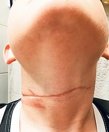Kacper zaraz po zdarzeniu miał ślad - bruzdę na szyi; rana powoli goi się