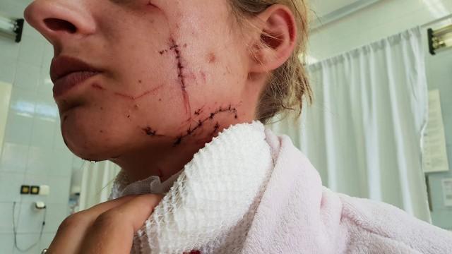 43-letni Daniel N. twierdzi, że jego żona została ranna w wyniku nieszczęśliwego wypadku. Tę wersję wydarzeń oceni Sąd Okręgowy w Opolu, przed którym toczy się proces.