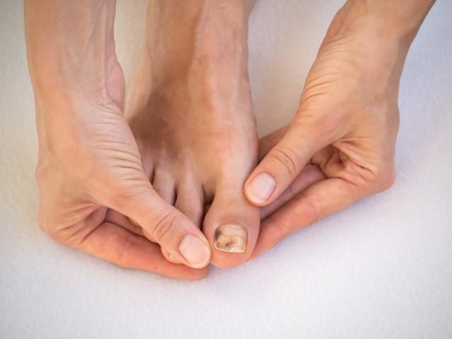 Siniak pod paznokciem to nie jedyny skutek urazu, np. stłuczenia. Często dochodzi też do odwarstwienia płytki, czyli onycholizy