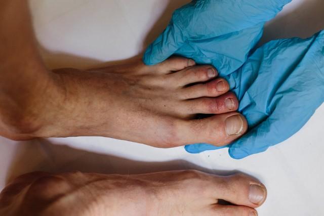 Zmiany na skórze stóp przypominają odmroziny, czyli uszkodzenia spowodowane zimnem dotyczące tkanki podskórnej.