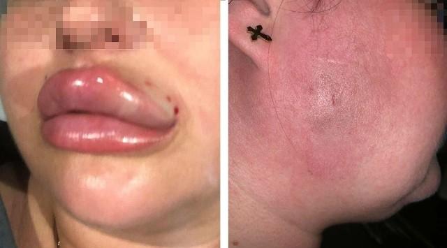Tak wyglądały usta i twarz pani Laury po zabiegu powiększenia ust i wyszczuplenia twarzy u kosmetyczki z Poznania.Zobacz więcej zdjęć --->