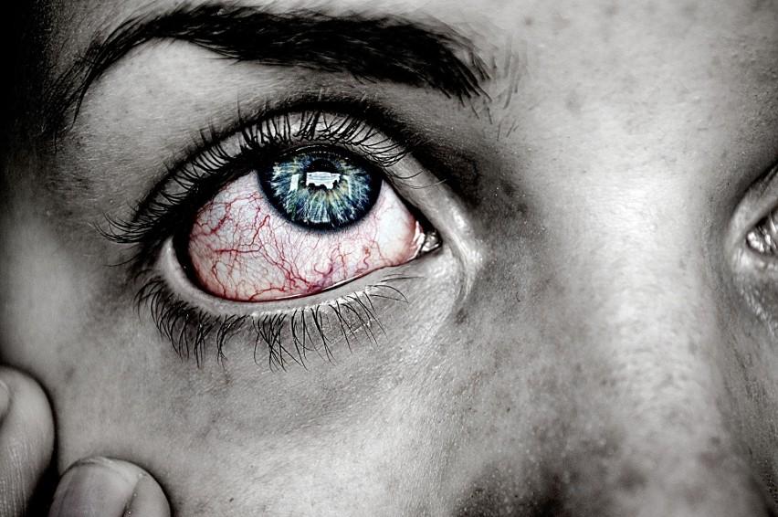 Ból oczu, zaczerwienienie lub zapalenie spojówek