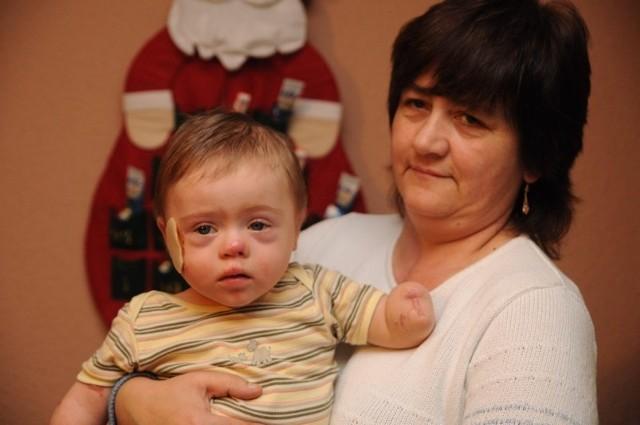 16-miesięczny Bartuś (na zdjęciu z mamą) w wyniku sepsy stracił rączki i nóżki.