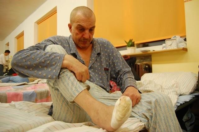 Sławomir Ostrowski jest bezdomny. Ma obcięte końcówki palców, bo jak zapewnia, za późno otrzymał pomoc z Miejskiego Ośrodka Pomocy Społecznej.