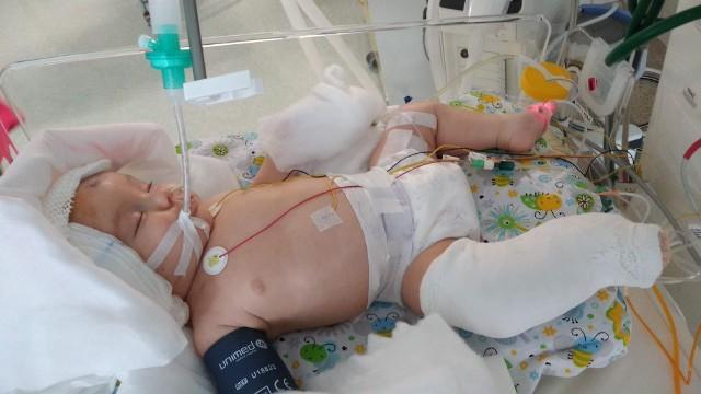 Filipek doznał poważnego urazu głowy. Potrzebuje intensywnej i kosztownej rehabilitacji, aby móc normalnie żyć