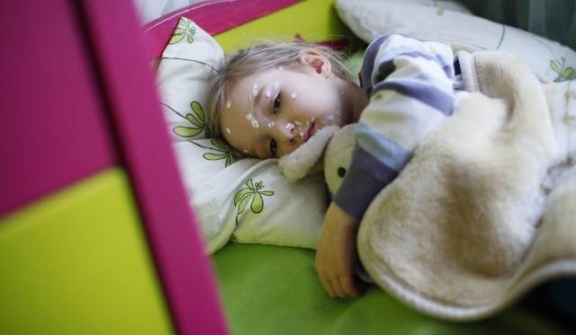 Ospa party - to rodzaj przyjęcia, podczas którego dzieci zdrowe przyprowadzane są do chorych, by te mogły zarazić je wirusem ospy. Rodzice celowo zarażają swoje dzieci, bo są przekonani, że tę chorobę w wieku dziecięcym przechodzi się łagodnie. Ich zdaniem szczepionki przeciwko ospie mogą doprowadzić do powikłań, które pojawić się mogą nawet po wielu latach od przyjęcia szczepionki.CO WARTO WIEDZIEĆ O OSPA PARTY ORAZ O OSPIE WIETRZNEJ? PRZECZYTAJCIE NA KOLEJNYCH STRONACH >>>>>>>>>Zobacz także: Ile zarabia handlowiec, a ile specjalista i dyrektor? [LISTA PŁAC]