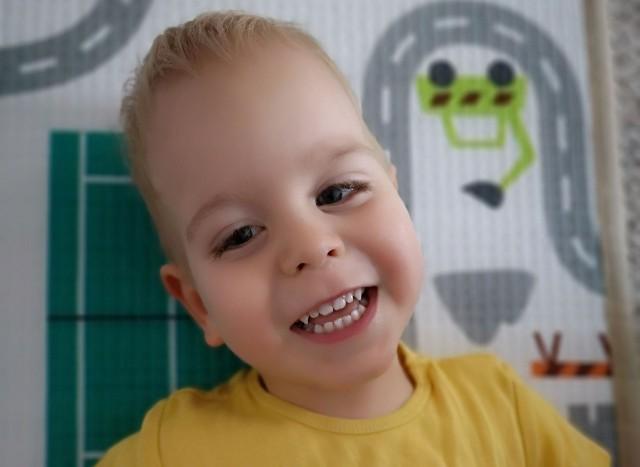 Kostek z Solca Kujawskiego cierpi na mózgowe porażenie dziecięce. Ma niedowład lewej rączki i nóżek. Koszty rehabilitacji są duże, stąd rodzice malucha proszą o pomoc.