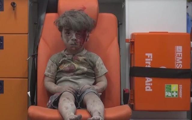 Wstrząsające zdjęcia pięciolatka, który ucierpiał podczas bombardowania Aleppo