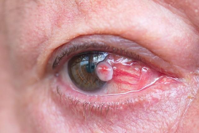 Lekarze mają do dyspozycji kilka metod leczenia nowotworów oka, dlatego niezwykle ważna jest wczesna i szybka diagnoza.