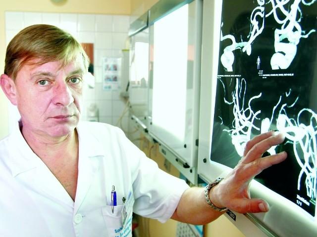 - Szacuje się, że tętniaki mózgu ma od 2 do 4 proc. populacji - mówi dr n. med. Jan Flakiewicz.