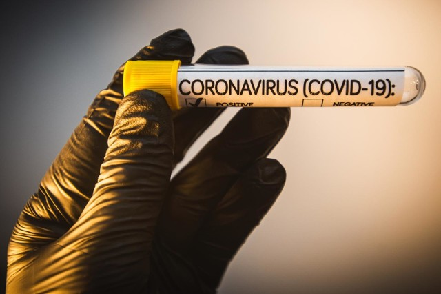 Wynik tekstu w kierunku obecności koronawirusa okazał się u pracownika firmy w gminie Chojnice pozytywny