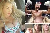Były mistrz świata w boksie tak uderzył partnerkę, że ta musiała przejść cztery operacje?! [ZDJĘCIA, GALERIA]