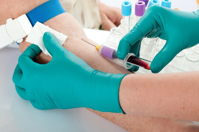 Anemia to stan, w którym stężenie hemoglobiny, liczba erytrocytów i hematokryt we krwi spadają poniżej prawidłowych wartości, co można stwierdzić na podstawie jej badań