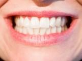 ZAPYTAJ LEKARZA | Myślę o wybieleniu zębów, czy warto robić to na własną rękę, czy jednak skorzystać z pomocy specjalisty?