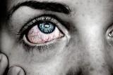 GIF wycofuje serię popularnych kropli do oczu