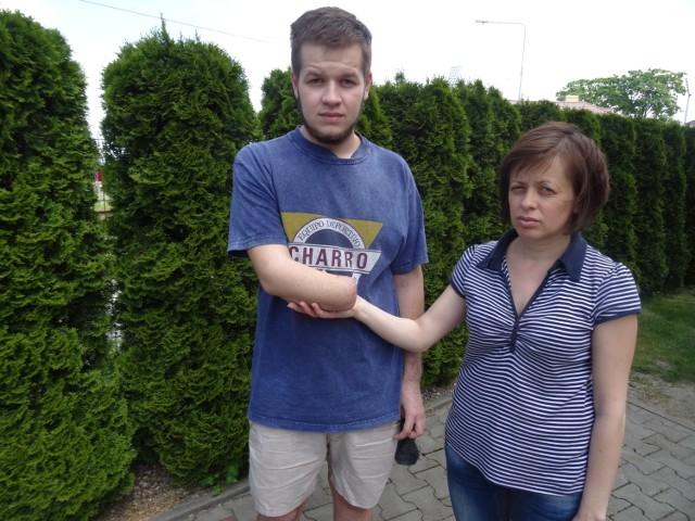 Ukrainiec stracił rękę przy pracy w polskiej firmie