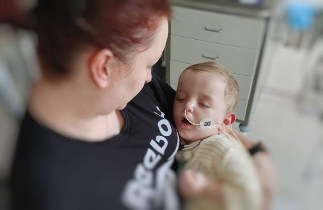 Dwuletni Michaś powoli dochodzi do zdrowia po wypadku