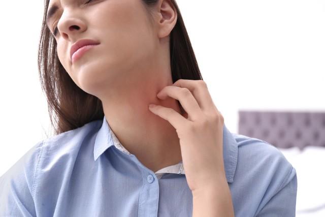 Potówki to rodzaj zmian skórnych, który jest konsekwencją zablokowania gruczołów potowych.