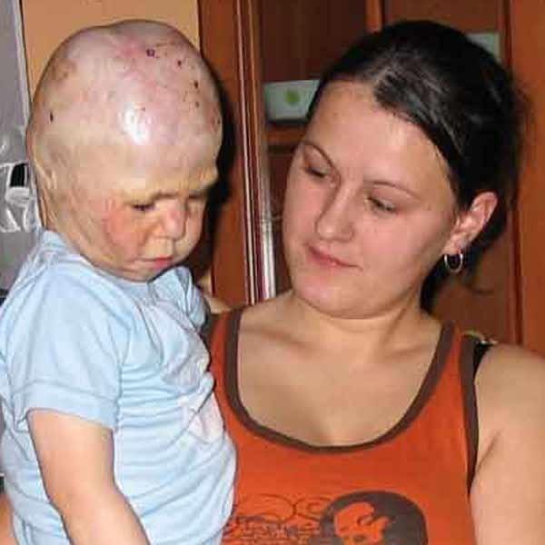 Anna Kuczma, mama Oli spędziła z dzieckiem w szpitalu kilka miesięcy. Dziecko musi przejść kolejne operacje, w tym plastyczną twarzy.