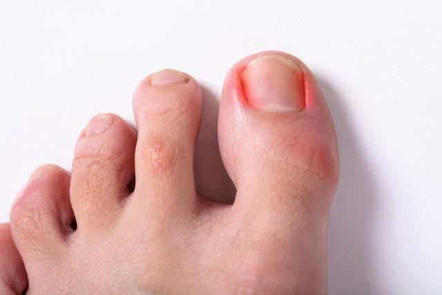Zastrzałem nazywa się bakteryjny stan zapalny zlokalizowany tuż przy paznokciu najczęściej u palców dłoni, rzadziej u stóp. Pulsujący ból obrzękniętego paliczka, silne zaczerwienienie, ropień i ból podczas nawet delikatnego dotyku są charakterystycznymi objawami tej przykrej dolegliwości. Zobacz, jak domowymi sposobami poradzić sobie z zastrzałem! Przesuwaj zdjęcia w prawo przez naciśnięcie strzałkę lub przycisku NASTĘPNE.