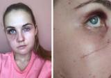 Ofiara koszmarnego wypadku pod Kłobuckiem apeluje o pomoc. Ranna Dominika chce wrócić do zdrowia i odzyskać urodę