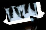 Groźne powikłania po COVID-19. Coraz więcej pacjentów, którzy łagodnie przeszli infekcję trafia z nimi do lekarzy