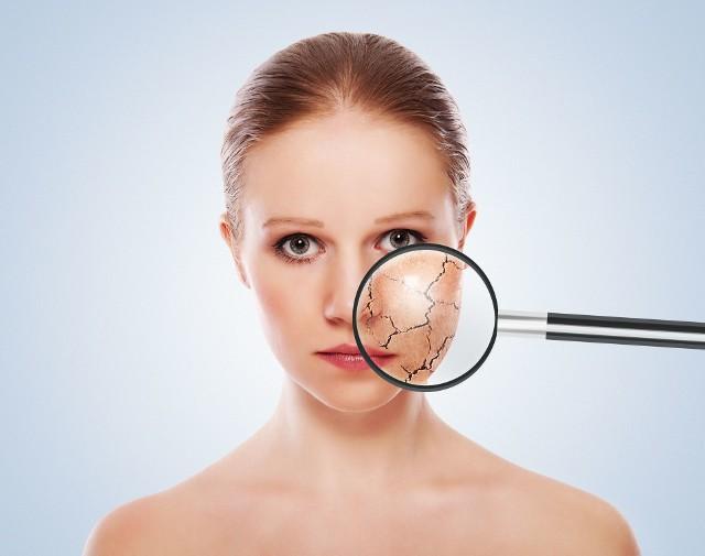 Nowy rodzaj kosmetyków jest szczególnie skuteczny we wzmacnianiu ochronnej bariery, chroniącej skórę przed działaniem patogenów, alergenów i czynników drażniących