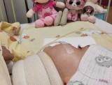 """Lekarze z Gdańska uratowali 3-letnią Martynkę z Namysłowa, która miała... oderwaną głowę. CUD w Centrum Urazowym dla Dzieci w """"Koperniku"""""""
