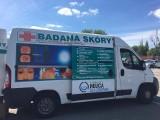 Szczecin: Bezpłatne badania znamion i pieprzyków