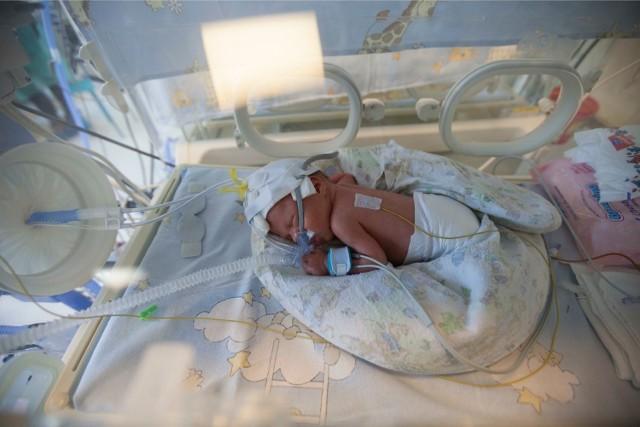 Karolek urodził się w 32 tyg. ciąży, waży zaledwie 1 kg 590. Jest maleńki i sprawia wrażenie tak kruchego, jakby najlżejszy dotyk mógł go uszkodzić