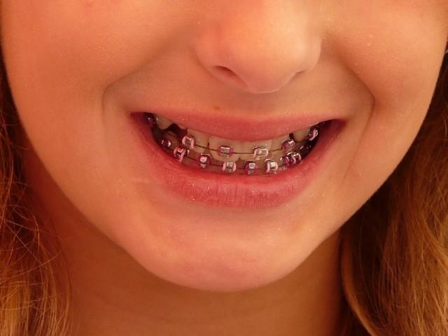 Dzieci, które dbają o zęby jest zdecydowanie mniej niż tych, które mają fatalny stan uzębienia