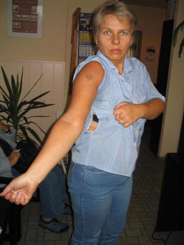 Zdaniem Marzeny Szostak, wizyta policjantów w mieszkaniu zajmowanym przez nią i jej byłego męża zakończyła się siniakami i podartą bluzką.