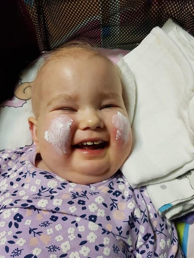Dwuletnia Lenka choruje od lipca ub. roku