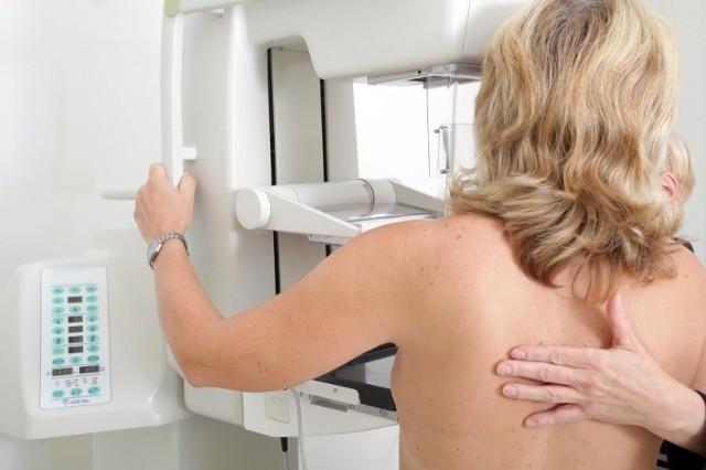Do darmowej mammografii uprawnione są panie w wieku 50-69 lat.