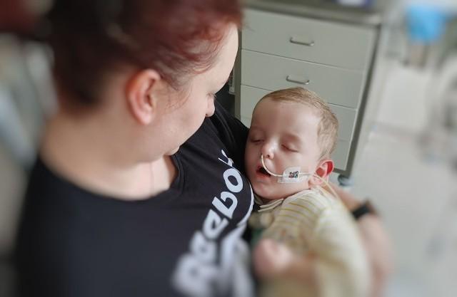 Dwuletniego Michałka czeka teraz bardzo trudna rehabilitacja…