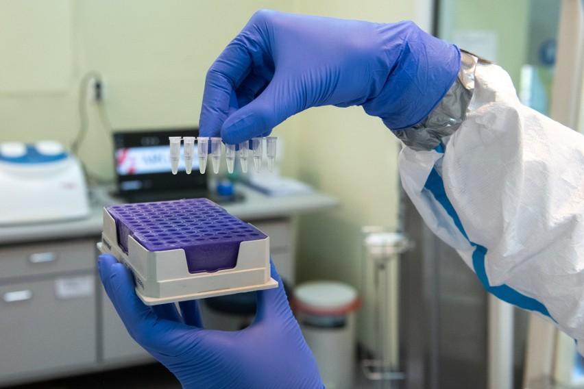 Przygotowanie próbek do badania genetycznego w kierunku COVID-19 metodą RT-PCR